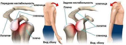 Вывих плечевого сустава открытая операция развитие тазобедренных сустав